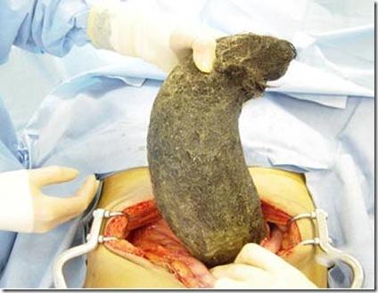 trichobezoar-removal-surgery-picture2