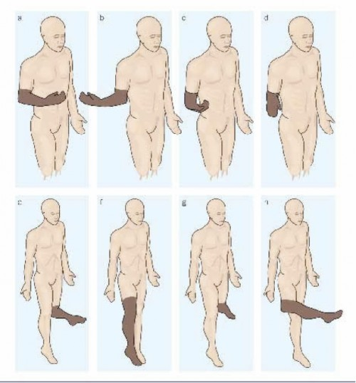Fig. 1: Illustration of 'paralyzed' phantom limb sensations, Phantom Pain by Rebecca Brightwell via AgrAbility in Georgia (http://agrabilityinga.com/phantompain.html)