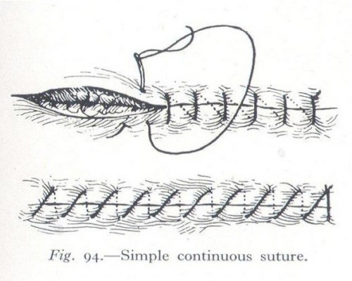 Fig. 3: Simple Continuous Suture from Surgery for Nurses by James Kemble (1949) via The Serendipity Project (http://serendipityproject.wordpress.com/)